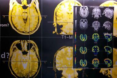 如何验证癫痫疾病